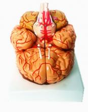 3D Medical Brain Mould